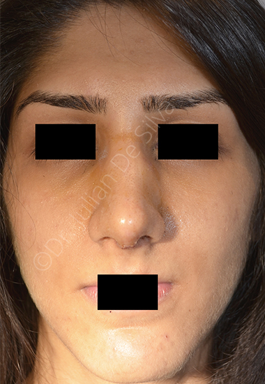 Nose Re-Shaping After 14