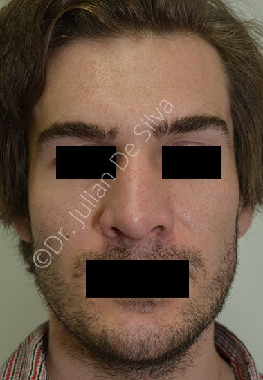 Nose Re-Shaping After 15
