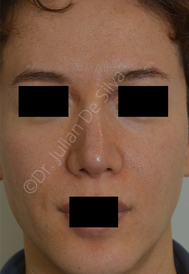 Nose Re-Shaping After 16