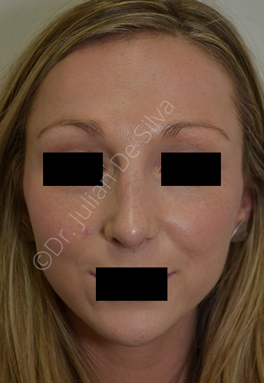 Nose Re-Shaping After 19