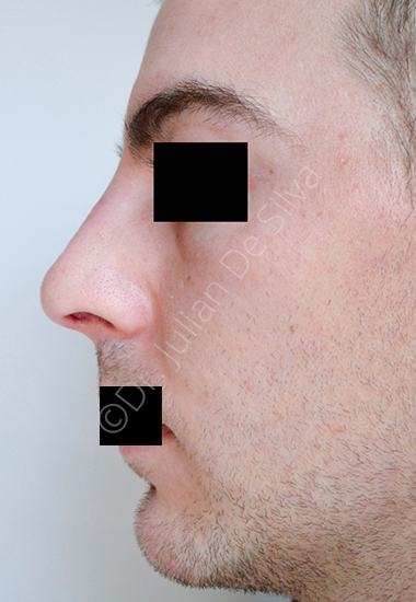 Nose Re-Shaping After 2