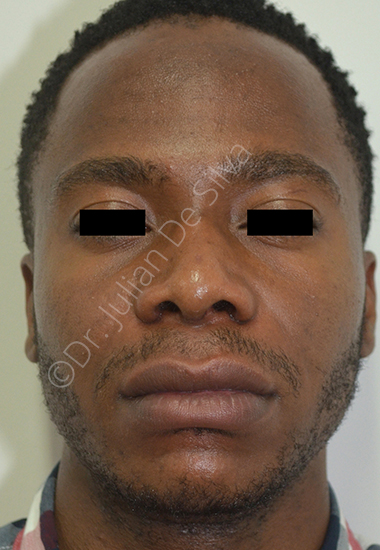 Nose Re-Shaping After 20