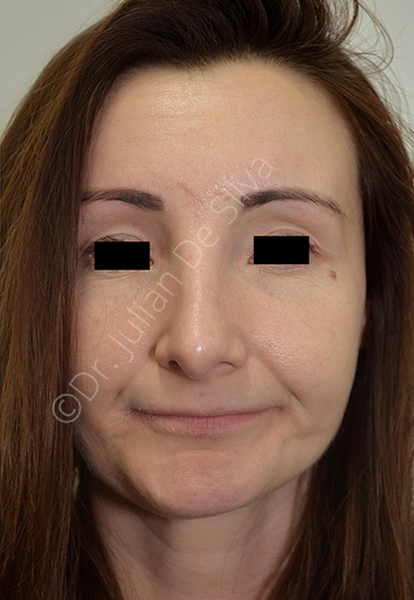 Nose Re-Shaping After 23