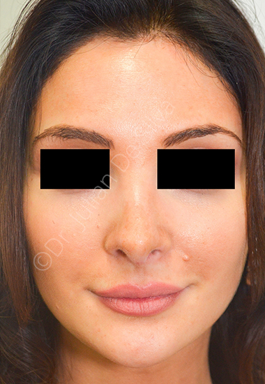 Nose Re-Shaping After 26