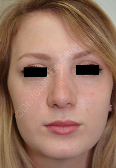 Nose Re-Shaping After 30