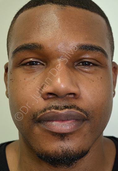 Nose Re-Shaping After 31