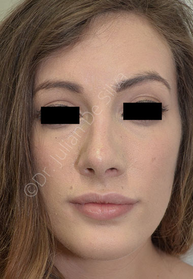 Nose Re-Shaping After 33