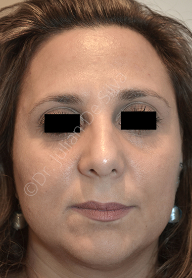 Nose Re-Shaping After 35