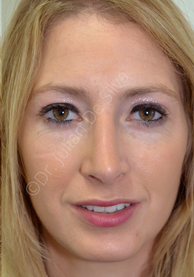Nose Re-Shaping After 36