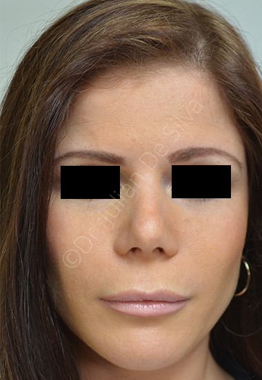 Nose Re-Shaping After 4