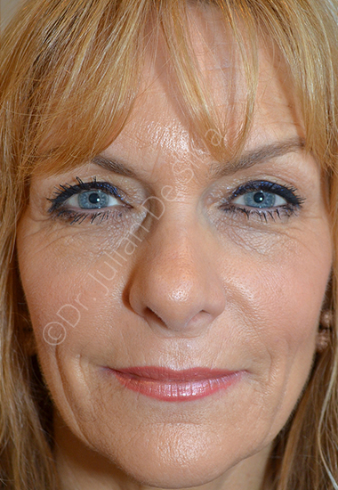 Nose Re-Shaping After 45