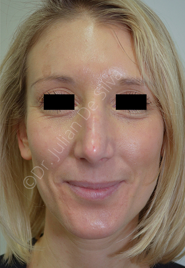 Nose Re-Shaping After 48