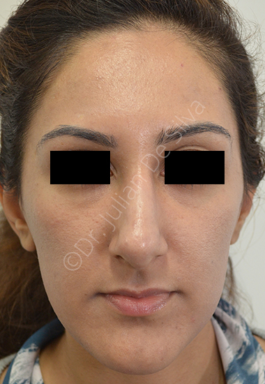 Nose Re-Shaping After 5