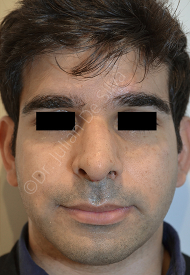 Nose Re-Shaping After 50
