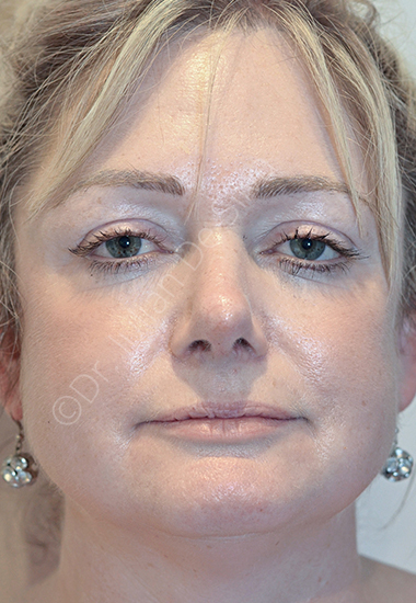 Nose Re-Shaping After 54