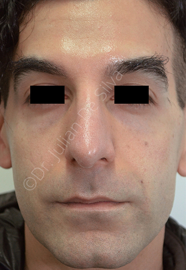 Nose Re-Shaping After 63