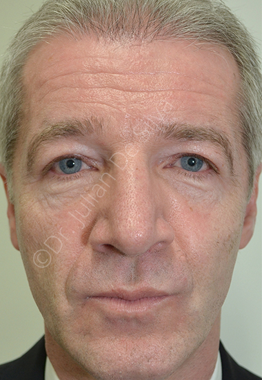 Nose Re-Shaping After 64