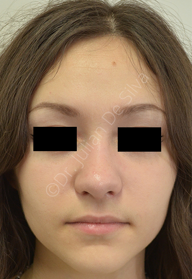 Nose Re-Shaping After 7
