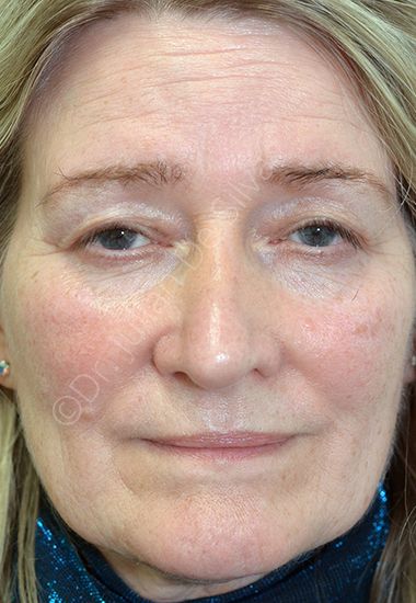 Nose Re-Shaping After 75