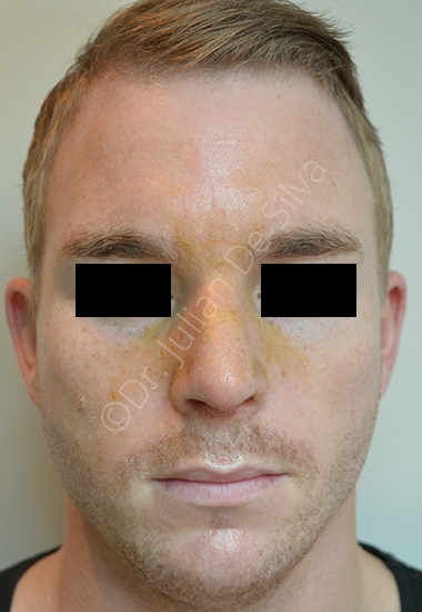 Nose Re-Shaping After 8
