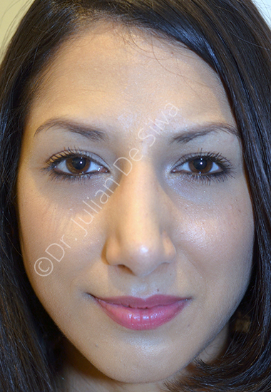 Nose Re-Shaping After 80