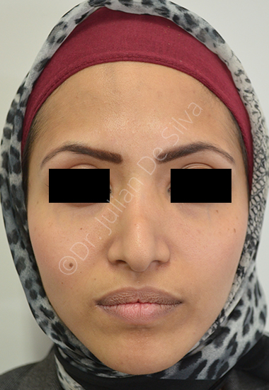 Nose Re-Shaping Before 10