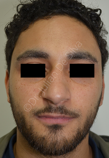 Nose Re-Shaping Before 12