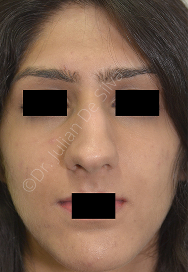Nose Re-Shaping Before 14