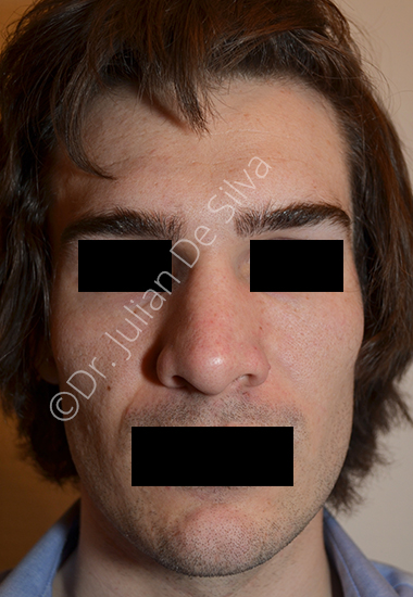 Nose Re-Shaping Before 15