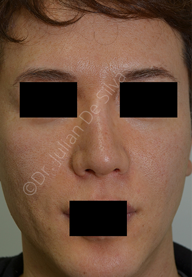 Nose Re-Shaping Before 16