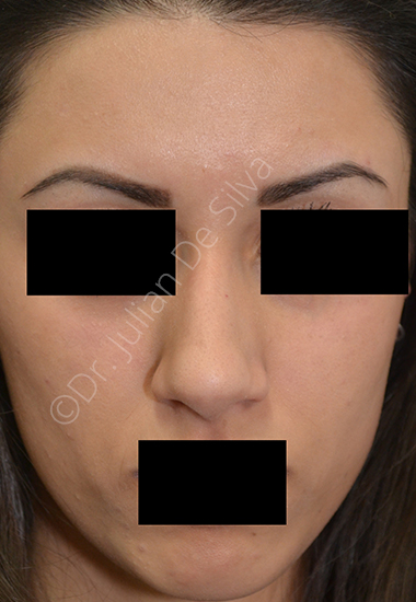 Nose Re-Shaping Before 17