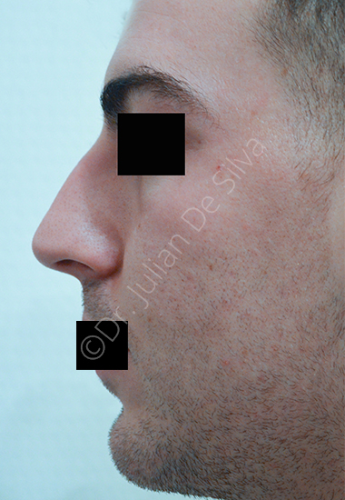 Nose Re-Shaping Before 2