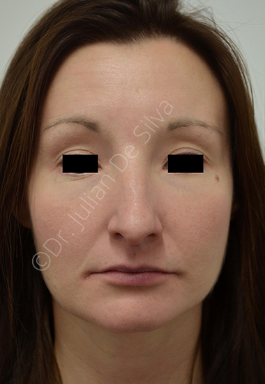 Nose Re-Shaping Before 23
