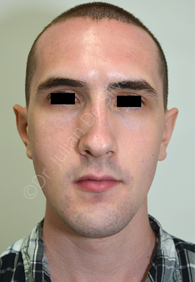 Nose Re-Shaping Before 24