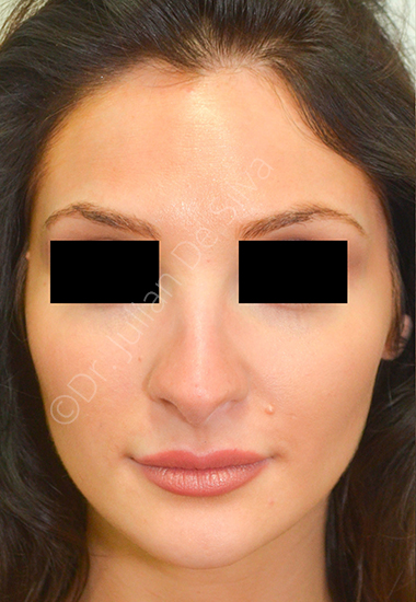 Nose Re-Shaping Before 26