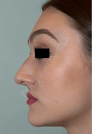 Nose Re-Shaping Before 27