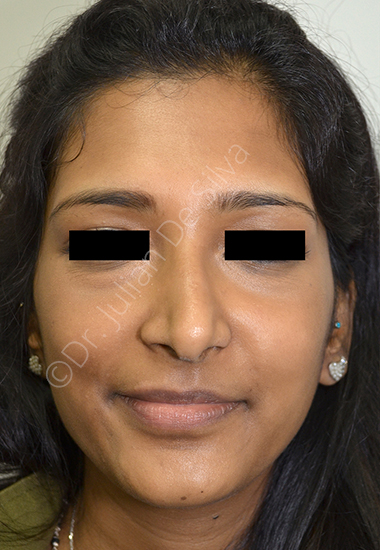 Nose Re-Shaping Before 28