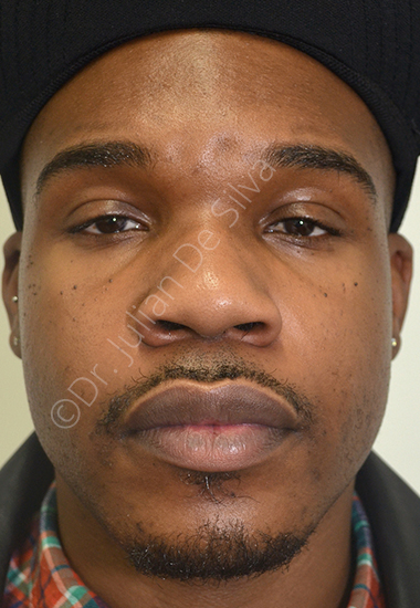 Nose Re-Shaping Before 31