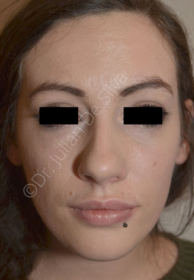 Nose Re-Shaping Before 33