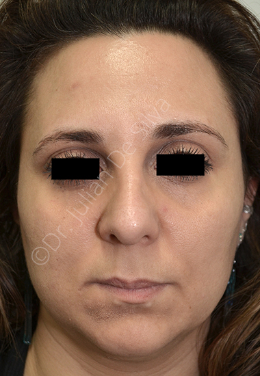 Nose Re-Shaping Before 35