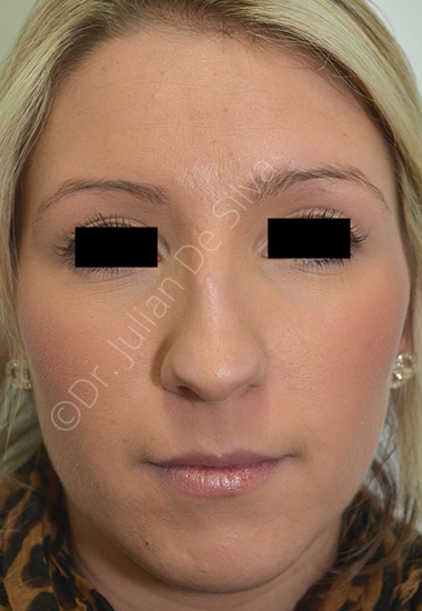 Nose Re-Shaping Before 37