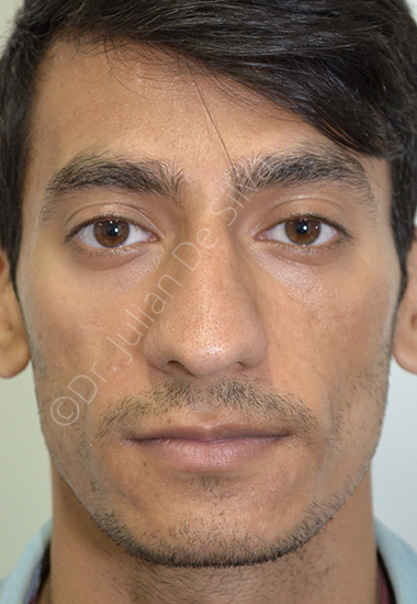 Nose Re-Shaping Before 38