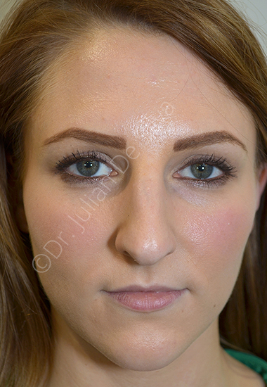 Nose Re-Shaping Before 40