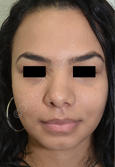 Nose Re-Shaping Before 41