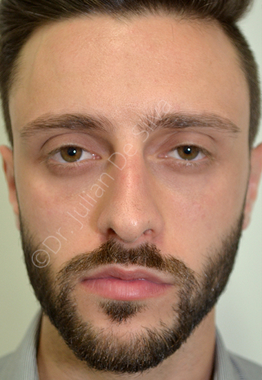 Nose Re-Shaping Before 44