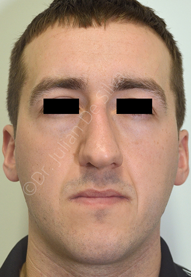 Nose Re-Shaping Before 46