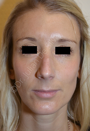 Nose Re-Shaping Before 48