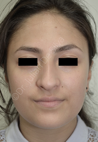 Nose Re-Shaping Before 49