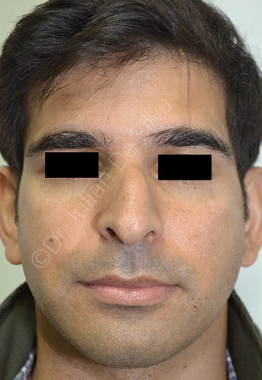 Nose Re-Shaping Before 50