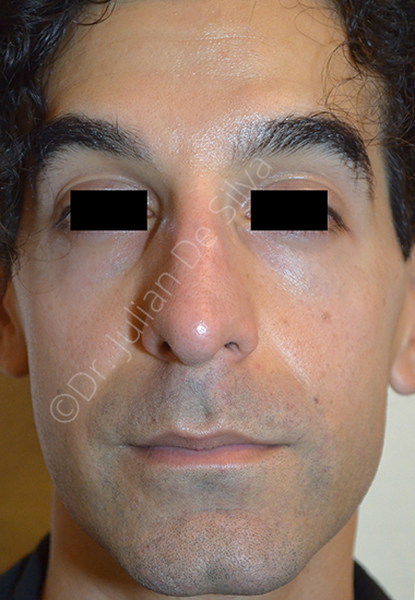 Nose Re-Shaping Before 63